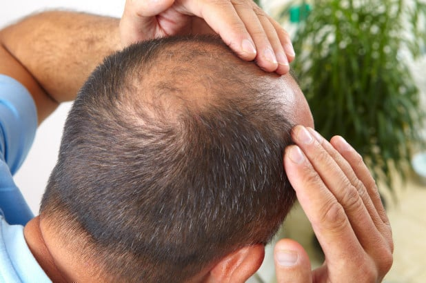 Hair Loss and DHT